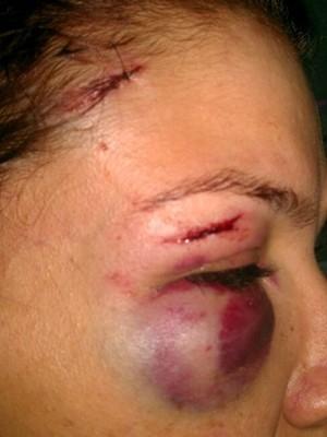 Após agressão, ex-mulher de cantor sertanejo pede proteção à polícia
