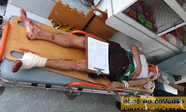 PI: Acidente entre moto e caminhonete deixa 2 feridos