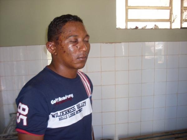 Vítima de tentativa de homicídio escapa com vida e presta depoimento a polícia