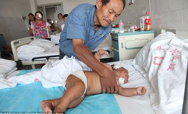 Bebê leva 90 tesouradas no rosto pela própria mãe porque mordeu seu seio enquanto mamava