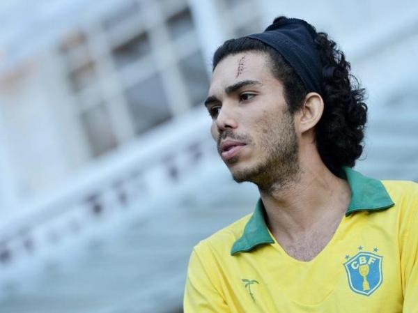 Jovem atingido por cinzeiro em protesto no Rio é detido por porte de maconha