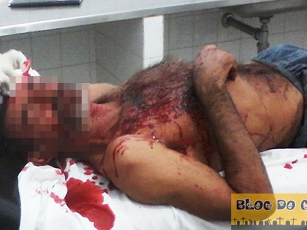 Homem é agredido com paulada na cabeça pelo próprio vizinho