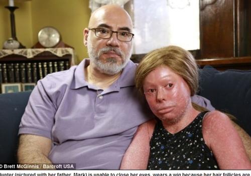 Doença rara deixa jovem com aparência de quem foi queimada