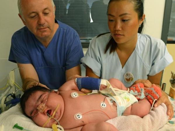 Mulher dá à luz bebê de 6,1 kg de parto normal na Alemanha