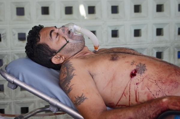Ex-presidiário sofre tentativa de homicídio a tiros no Piauí