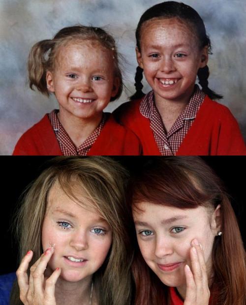 Irmãs adolescentes sofrem por doença fazer elas perderem pele