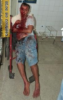 Homem fica gravemente ferido após ser agredido a facãozadas
