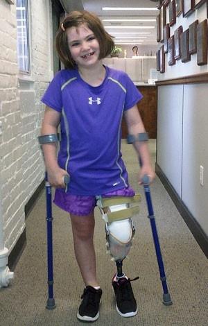 Menina que perdeu perna em atentado de Boston comemora primeiros passos