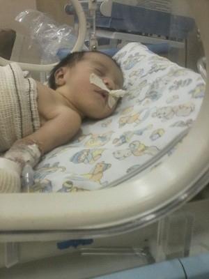 Pai pede ajuda para cuidar de bebê que nasceu com órgãos expostos