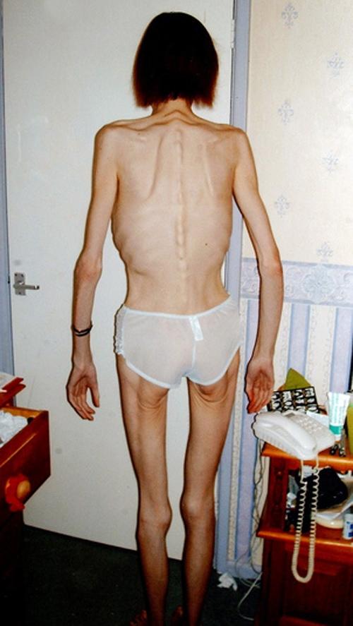 Após trauma, anoréxica recupera 31 kg com dieta especial. Fotos!