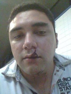 Fotógrafo é espancado por ladrão no Ceará e relata crime em rede social