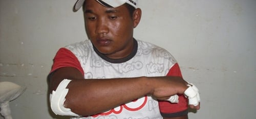 Acidente deixa comerciante em estado grave na cidade de José de Freitas/PI