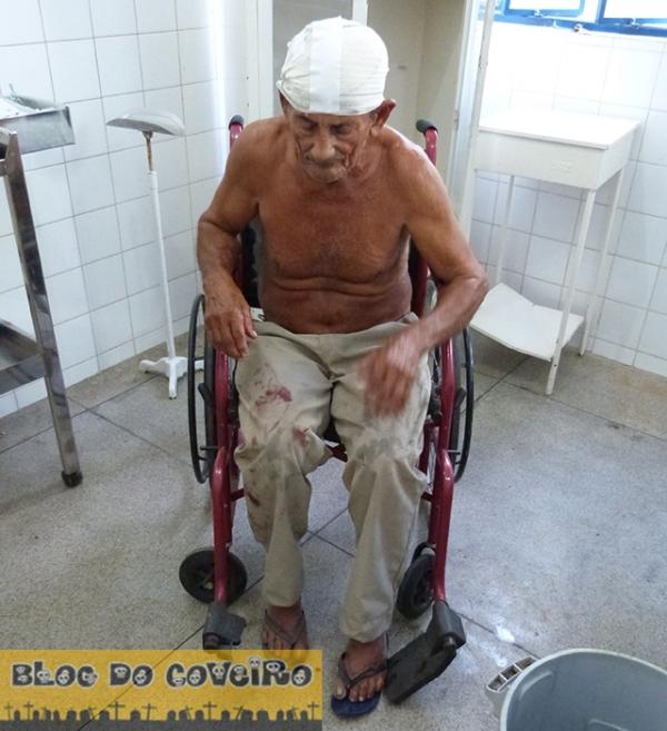 Idoso fica gravemente ferido após colisão entre moto e bicicleta