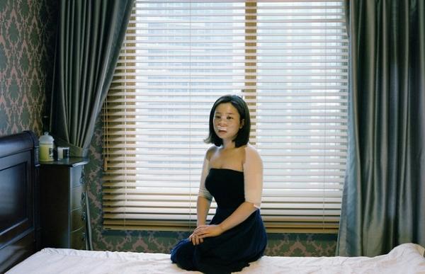 Fotógrafa mostra como é recuperação de quem passa por cirurgias plásticas