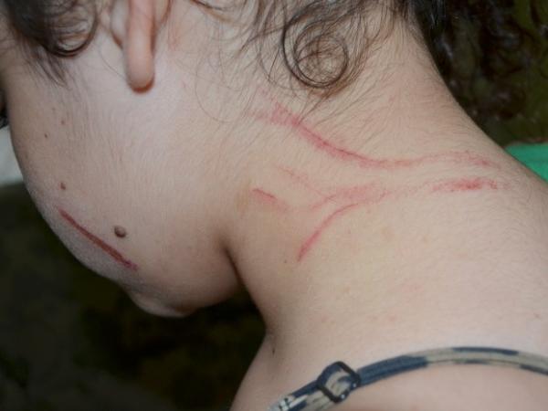 Menina sofre bullying e apanha na saída da escola em Piracicaba, SP