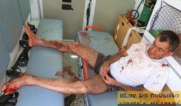 Homem sofre acidente de moto e perde dedo do pé