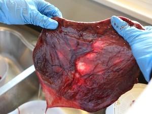 Prática de comer placenta está se espalhando pelos Estados Unidos