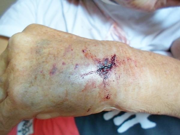 Desrespeito: Idosa é arrastada após prender o braço em porta de Van