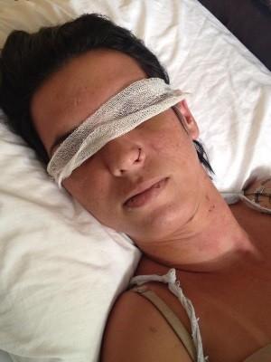 Mulher que teve olhos perfurados passa pela segunda cirurgia, em GO