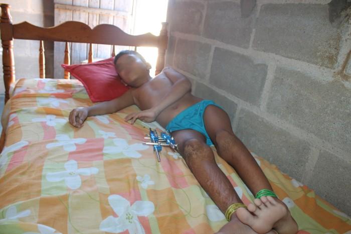 Sem assistência garoto passa necessidades em Dirceu Arcoverde