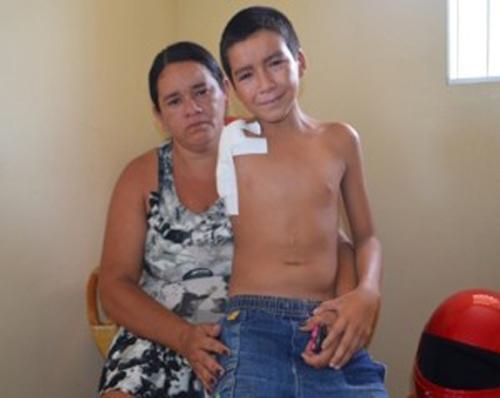 Garoto de 13 anos tem braço amputado em hospital de Parnaíba