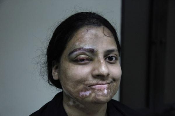 Médico recupera rosto de vítimas de ataque com ácido no Paquistão