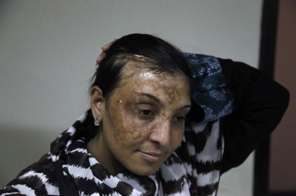 M馘ico recupera rosto de v咜imas de ataque com 當ido no Paquist縊
