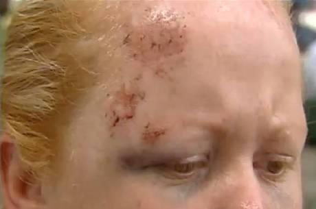 Mulher fica presa no carro do ex-marido e é arrastada por 70 m no RS