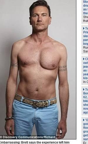 Peito de cabeleireiro fica deformado após implante de silicone