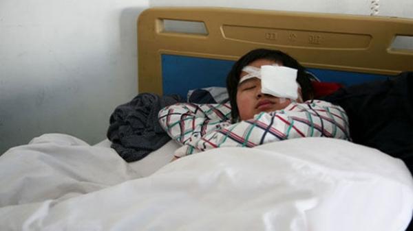 Aluno de 12 anos é submetido à cirurgia após professor obrigar colegas de classe a estapearem seu rosto