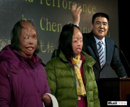 Duas mulheres que colocaram fogo em si mesmas recebem reconstrução facial de bilionário chinês