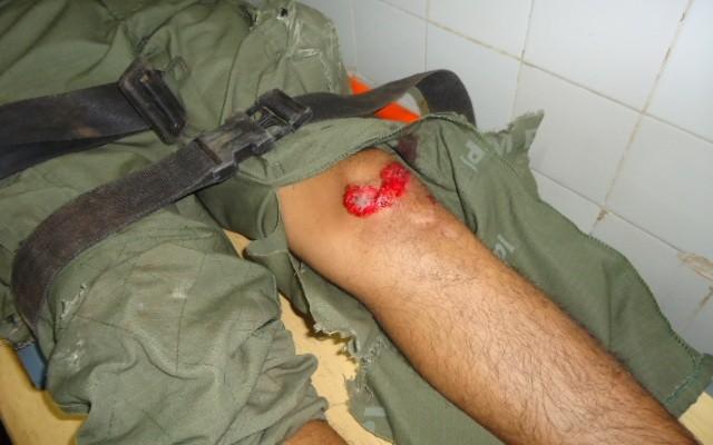 Policial Militar sofre grave acidente ao retornar para Teresina após as eleições - Imagem 5