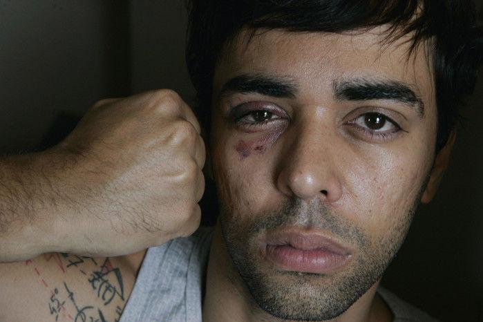Saiba quais são os 10 episódios que provam que ainda existe homofobia no Brasil - Imagem 7