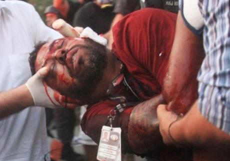 Família autoriza doação de órgãos de cinegrafista atingido por rojão em protesto no Rio