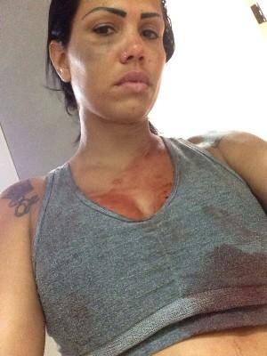 Cantora afirma ter sido agredida por ex-namorado: