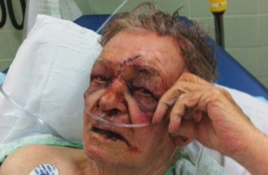 Bandidos sorriem felizes ap espancar e esfaquear homem de 86 anos