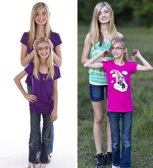 oença faz gêmeas terem diferença de 30 cm de altura