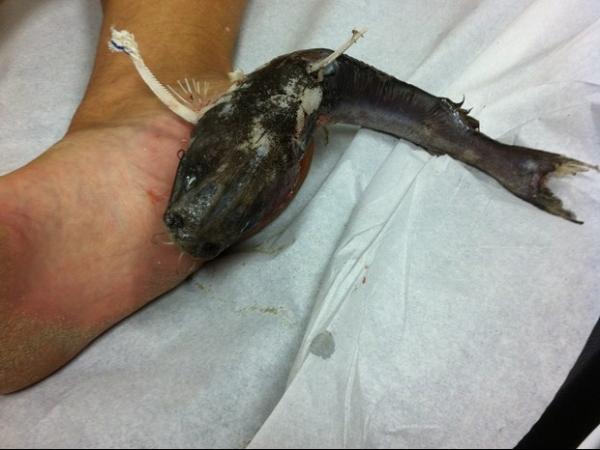 Mulher pisa em espinha, fica com peixe pendurado no pé e passa por cirurgia