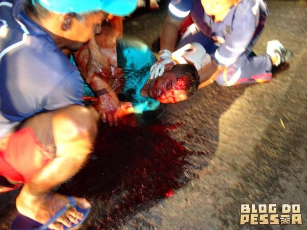 Homem sob efeito de bebida alcoólica sofre grave acidente na BR 343