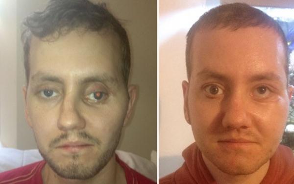 Prese feita em impressora 3D ajuda a reconstruir face ap fraturas; compare