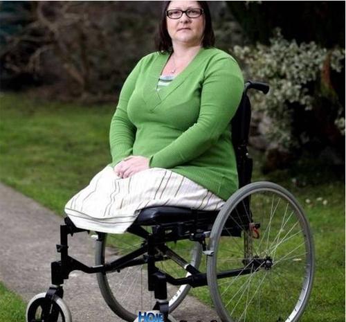 Mulher tem pernas amputadas por causa do cigarro