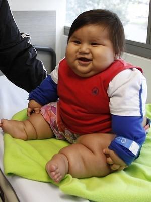 Bebê de 8 meses pesando 25 quilos inicia tratamento e comove a Colômbia