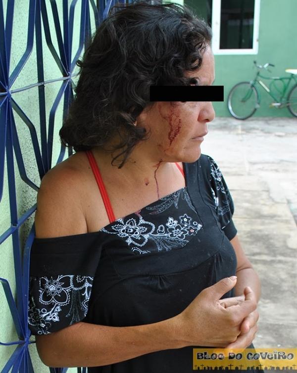 Mulher tenta defender irmão e acaba agredida com paulada na cabeça
