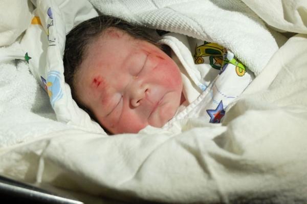 Bebê nasce