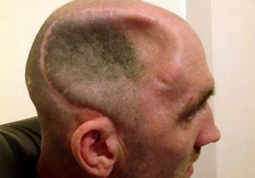 Homem atacado por segurança de bar fica com enorme lesão no crânio e fica em cadeira de rodas