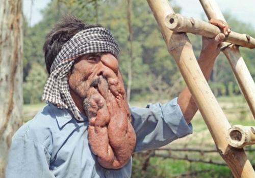 Indiano com enorme tumor no rosto procura médico que consiga melhorar sua aparência