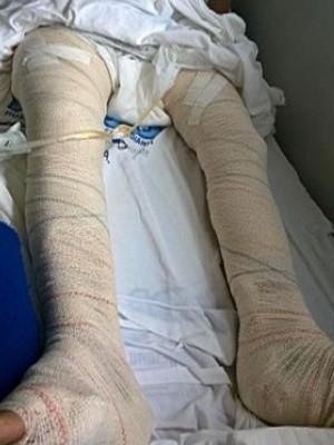 Idosa fratura as duas pernas após cair no chão de shopping em Goiânia