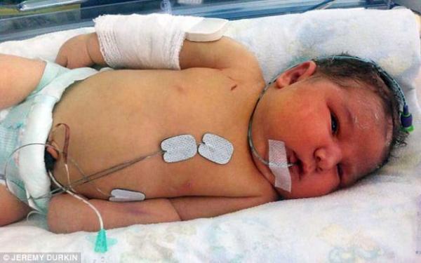 Médico quebra braço de bebê gigante durante parto para salvar vida da criança
