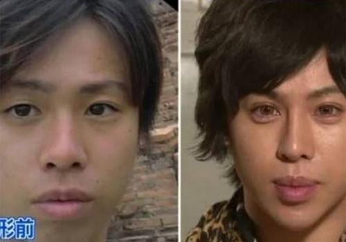 Japonês gasta R$ 338 mil em plásticas para virar escultura famosa