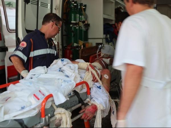 Jovem morre após ter 80% do corpo queimados em acidente com álcool